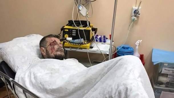 Замах на Мосійчука в Києві: деталі інциденту