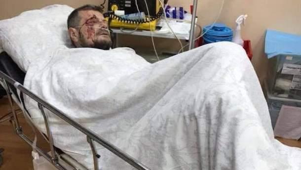 Ігор Мосійчук після вибуху