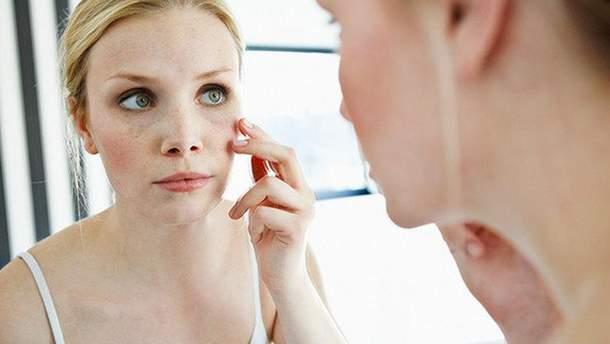 10 перевірених способів врятувати обвітрену шкіру