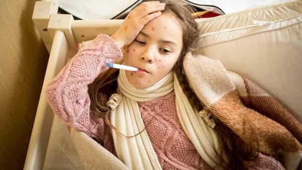 Кір в Україні: спалах хвороби зафіксували в Івано-Франківській області