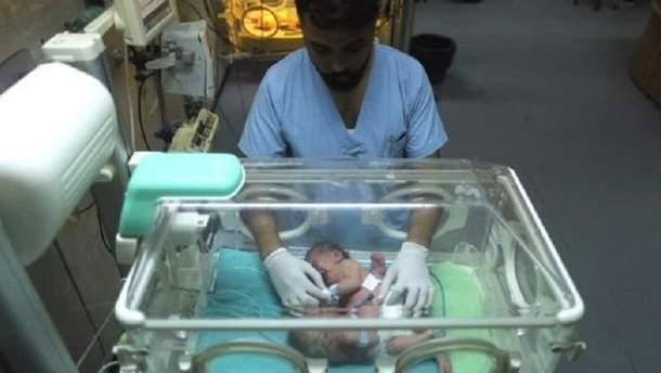 Операція з порятунку з'єднаних близнючок