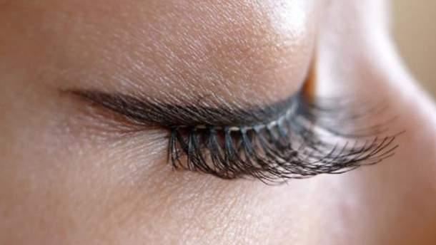 Наращивание ресниц вызвало сильную аллергию