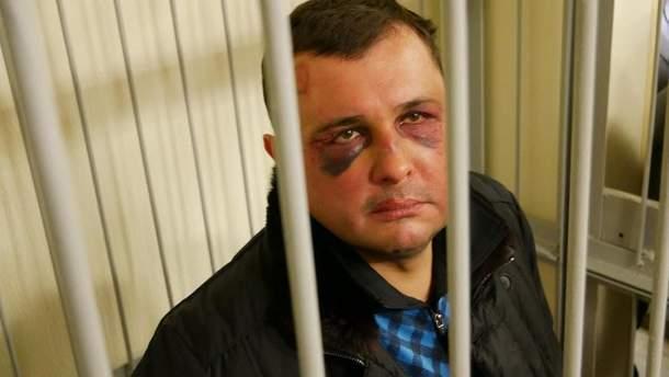 Матиос рассказал о травмах экс-нардепа Шепелева