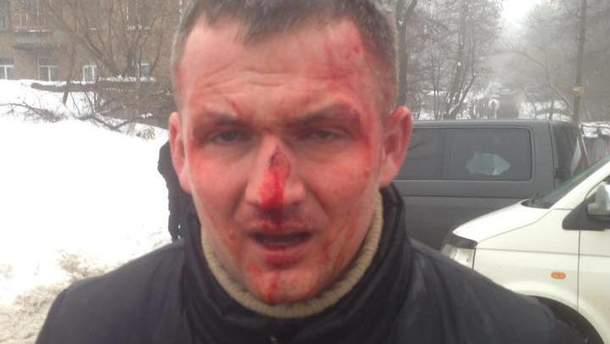 Нардеп Левченко після побиття