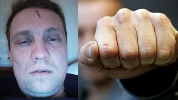 На Київщині побили Максима Вінніка