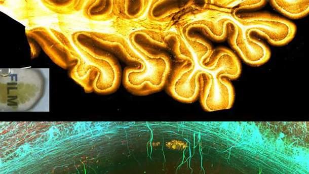 Як виглядає мозок в барвистій 3D-проекції