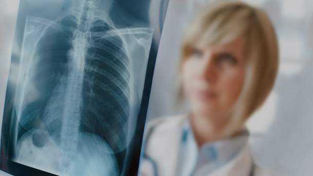 Флюорографія неефективна для виявлення раннього туберкульозу