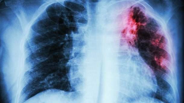 МОЗ впроваджує нові методи у діагностиці туберкульозу