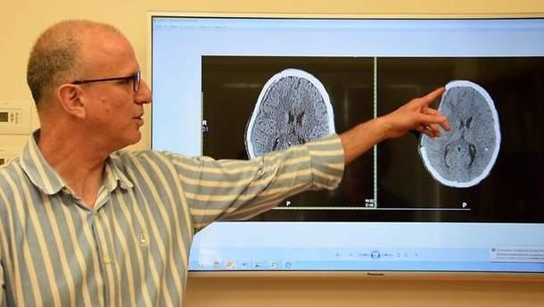 Лікар Нево Маргаліт показує видалену частину черепа