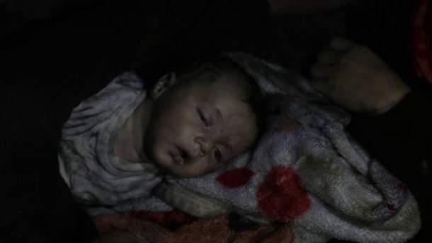 Жертвы химатаки в Сирии