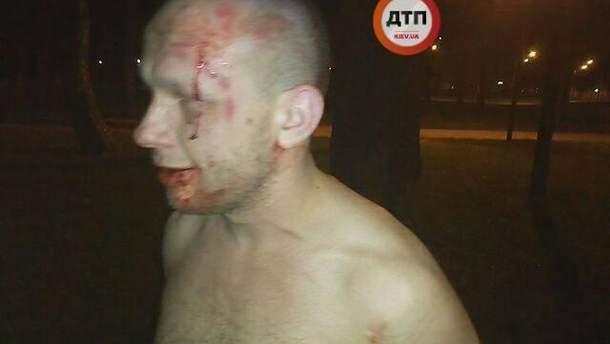 Встоличном парке вовремя потасовки  произошел взрыв , есть раненые