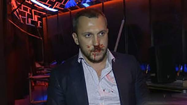 Дмитрий Линько с разбитым лицом