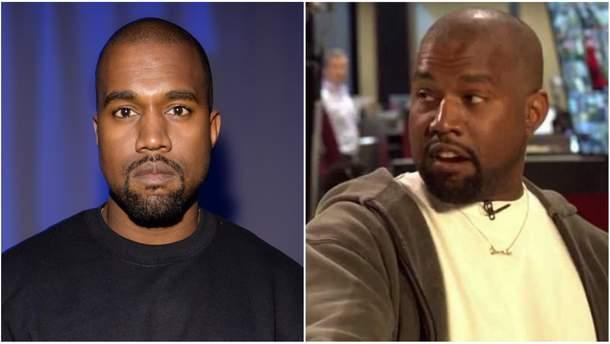 Каньє Вест до і після ліпосакції обличчя