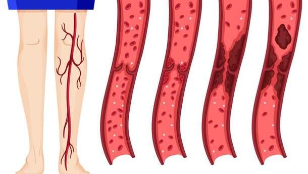 Ознаки тромбозу