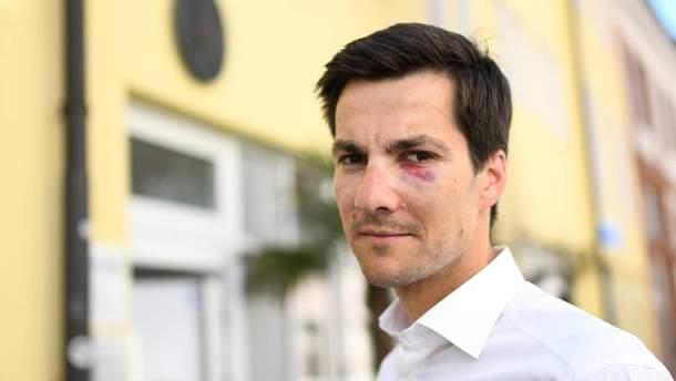 Мартину Горну сломали нос во время празднования победы на выборах мэра Фрайбурга