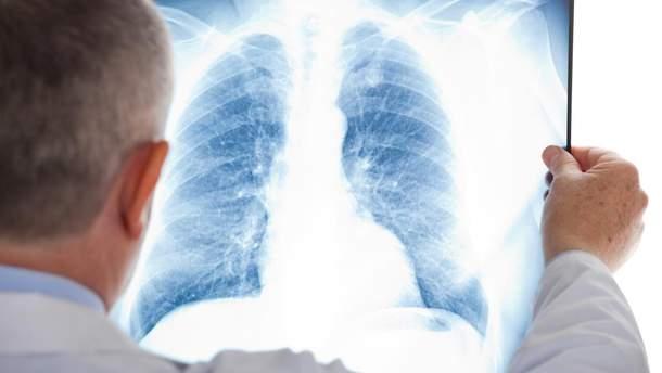 Туберкульоз (ілюстрація)