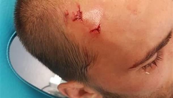 Бас Дост отримав травму після нападу фанатів