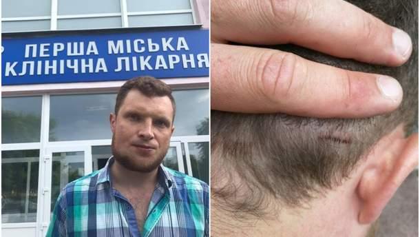 """У полтавському офісі """"Соціалістичної партії"""" побили журналіста Ярослава Журавля"""