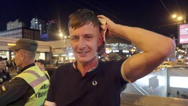 """Фанат """"Ліверпуля"""", на якого напали у Києві"""