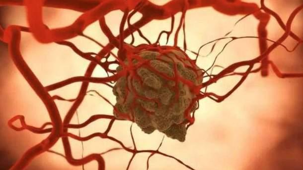 Штучний інтелект переміг професійних медиків