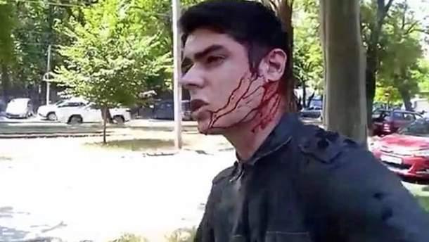 В Одессе напали на Виталия Устименко