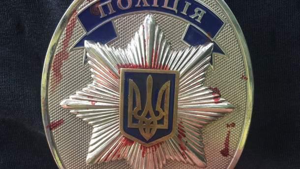 На Ровненщине во время столкновения с копателями янтаря пострадали восемь полицейских