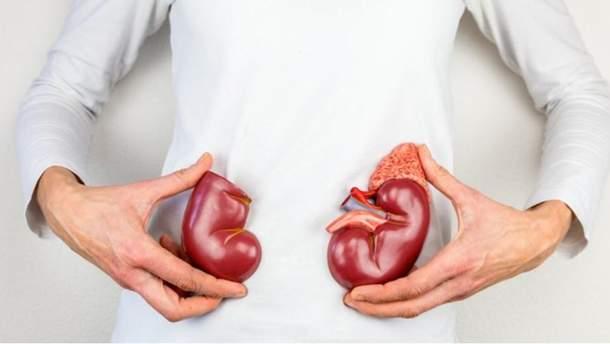 Профілактика сечокам'яної хвороби: поради від Супрун