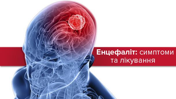 Енцефаліт: симптоми та лікування