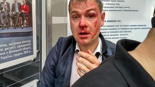 "Члены С14 избили заместителя председателя партии ""Умная сила"" Александра Савченко"