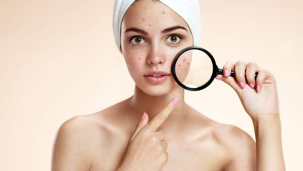 Як доглядати за шкірою влітку, щоб уникнути акне: дієві поради