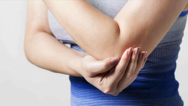 Основні симптоми артриту