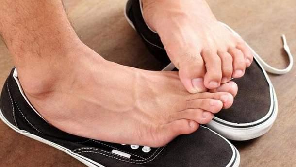 Що робити, якщо сильно пітніють ноги