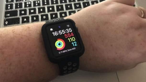 Apple Watch допоміг виявити рідкісну патологію