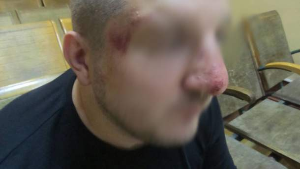 Побитый украинец