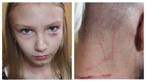 Пожилая женщина сильно избила несовершеннолетнюю девушку и ее отца в Киеве