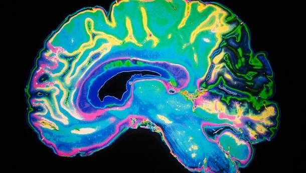 Які фактори сприяють старінню мозку