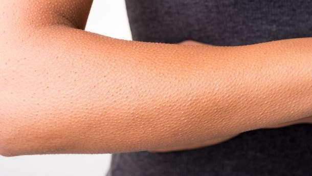 Эффект гусиной кожи
