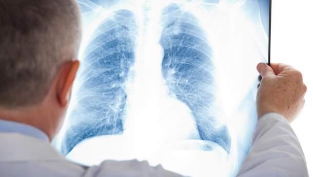 Туберкулез назвали самой смертоносной болезнью в мире