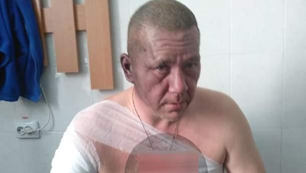 Ігор Хакімзянов постраждав від вибуху в Донецьку