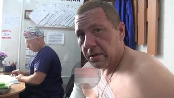 Постраждалий Хакімзянов вперше прокоментував вибух в Донецьку