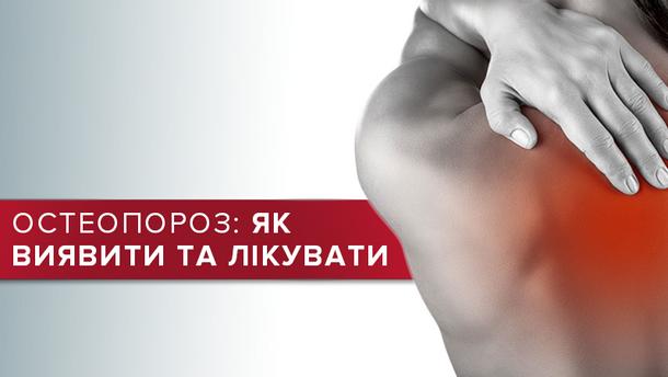 Остеопороз – причини, лікування та профілактика