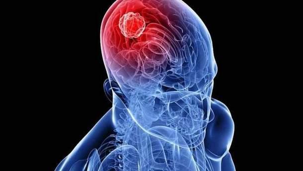 Рак мозку: ранні симптоми
