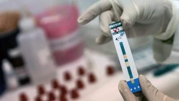 Тести на ВІЛ
