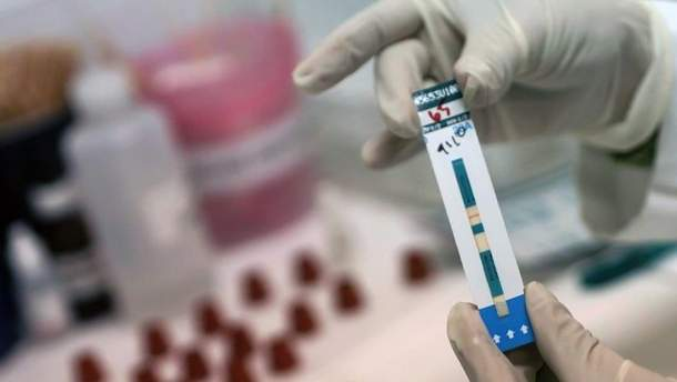 Тести на ВИЧ