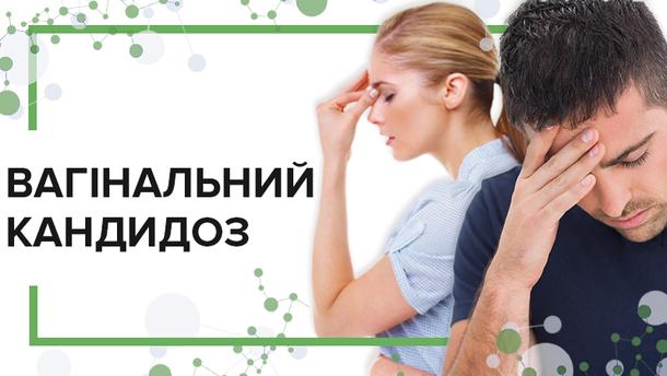 Все про молочницю: симптоми, причини, профілактика та лікування