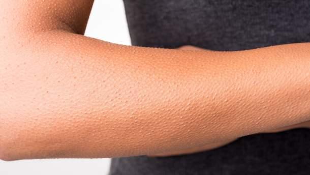 """Эффект """"гусиной кожи"""" стимулирует рост волос"""