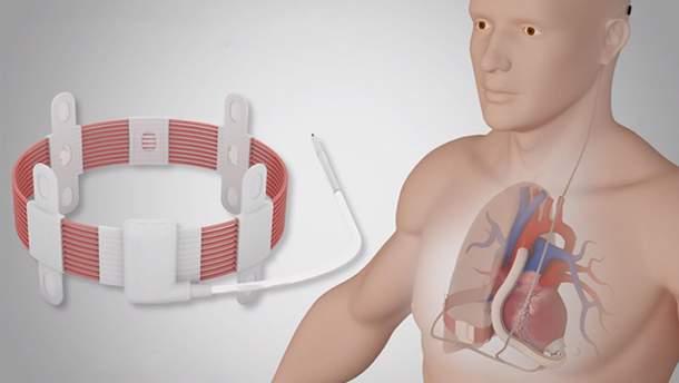 Вчені вперше вживили штучне серце з можливістю бездротової зарядки