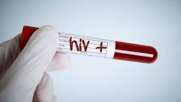 В Україні стало менше хворої молоді на ВІЛ