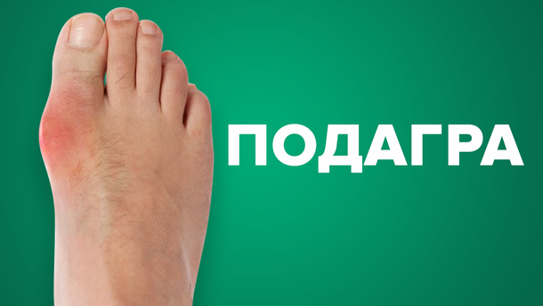 Что такое подагра: симптомы, причины и лечение болезни