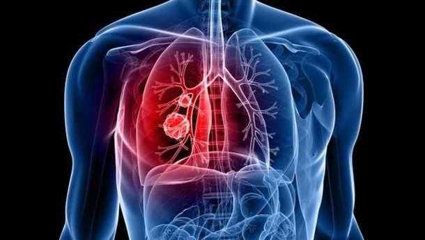 Десять міфів про туберкульоз та їхнє спростування